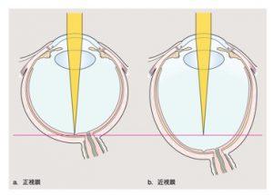 正視と近視の眼球比較